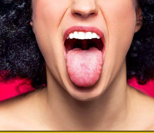 Білий язик. Причини, коли організм просить про допомогу