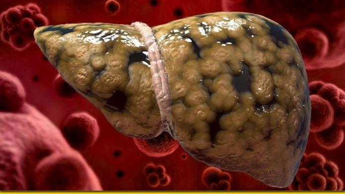 Продукти, які рятують печінку: те, що чистить і захищає
