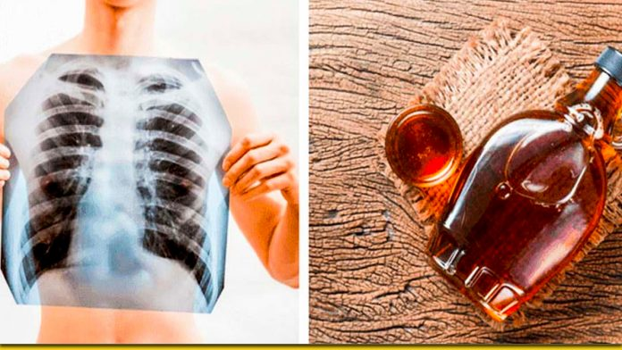 Потужний сироп для очищення легенів - народний засіб