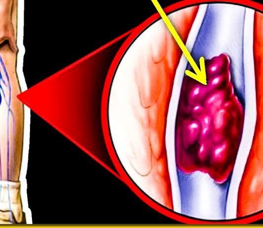 10 ознак того, що кров стала густою — перевіряємо себе самі